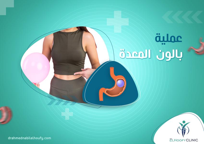 عملية بالون المعدة
