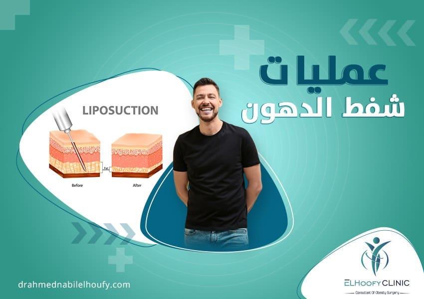 الحل النهائى لشد ترهلات الجلد بعد تكميم المعدة
