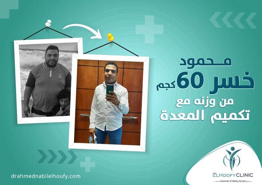 إخسر أكثر من 60 كيلو مع تكميم المعدة|قصة نجاح