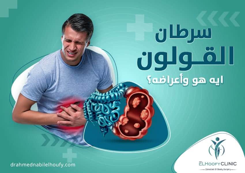 إستئصال سرطان القولون
