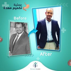 تكميم-قبل-بعد-فى-مصر